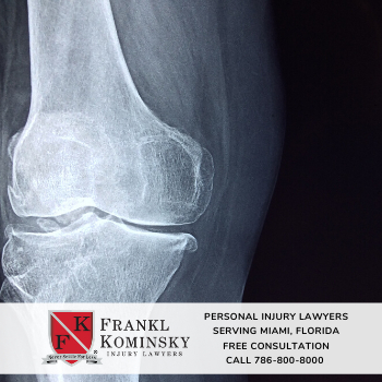 File a personal injury claim in Miami Lakes